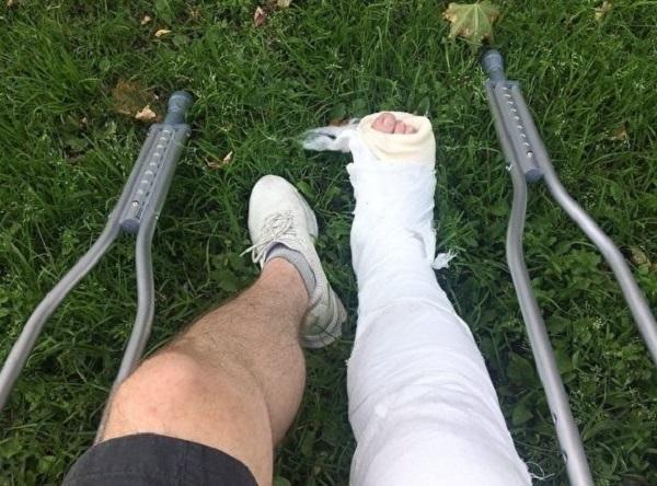 В СК заявили, что росгвардейцы правомерно сломали ногу московскому дизайнеру, который был на пробежке