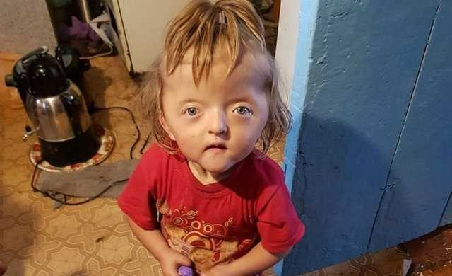 «Будет пугать детей»: в Башкирии девочку не приняли в детсад из-за нестандартного черепа