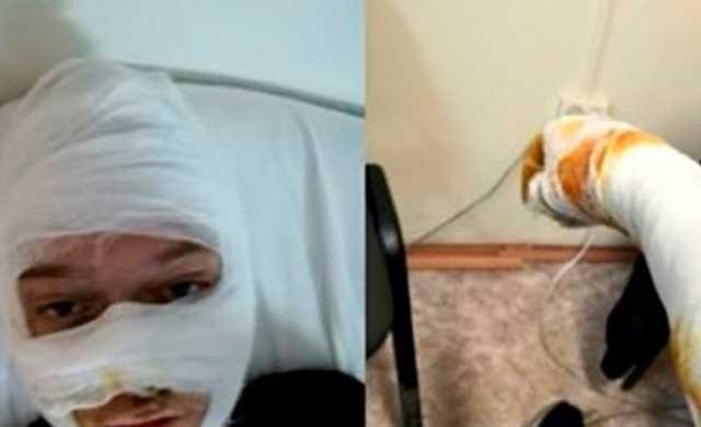 Обгоревших в полицейском УАЗике подростков обвинили в поджоге