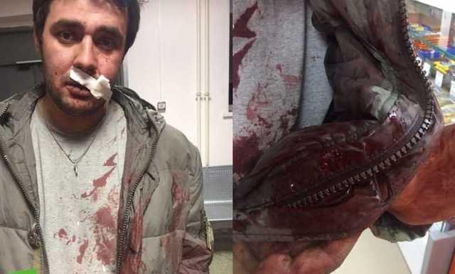 В Челябинске депутата избили битой за замечание